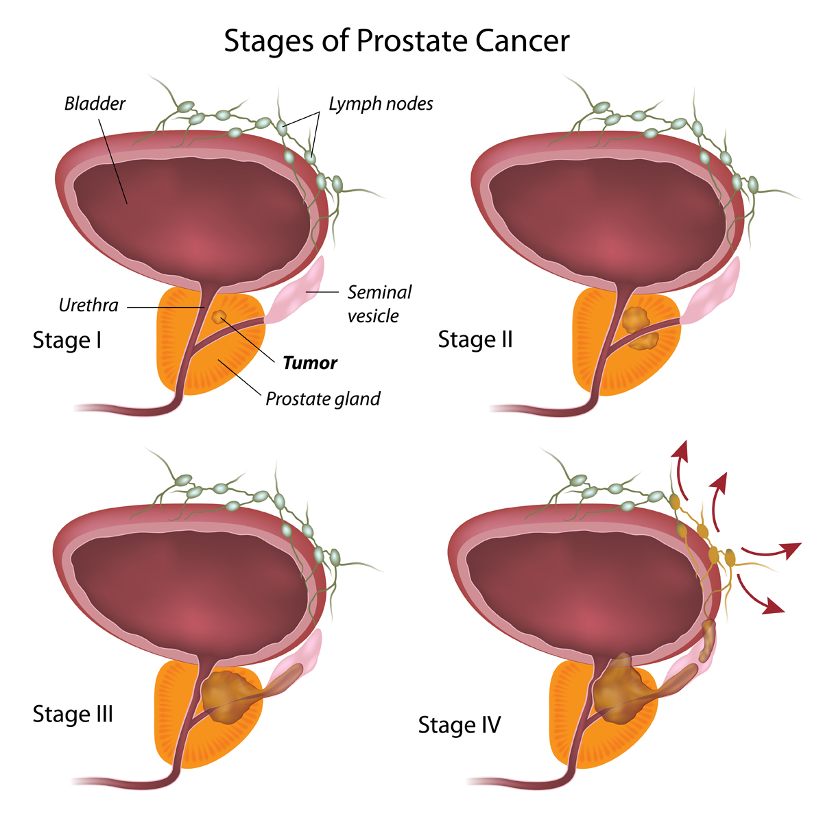 la tumpre de próstata cura en pavianna