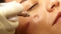 Este invento ayuda a eliminar el acné, granos y espinillas y también deja la piel con una apariencia tersa y juvenil.