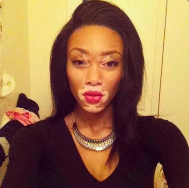 La primera modelo con vitiligo es espectacular