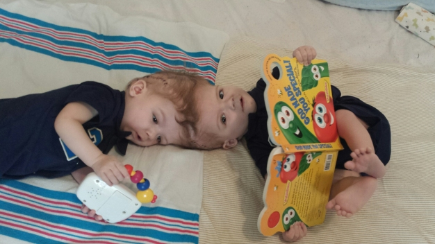 Siameses separados se recuperan tras compleja cirugía