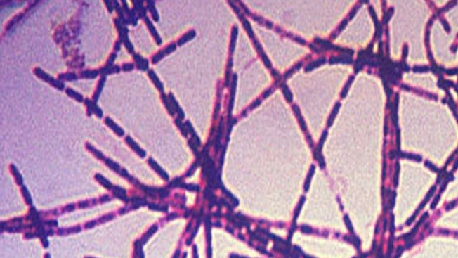 Envían ántrax por error, incluyendo a laboratorio de Stanford