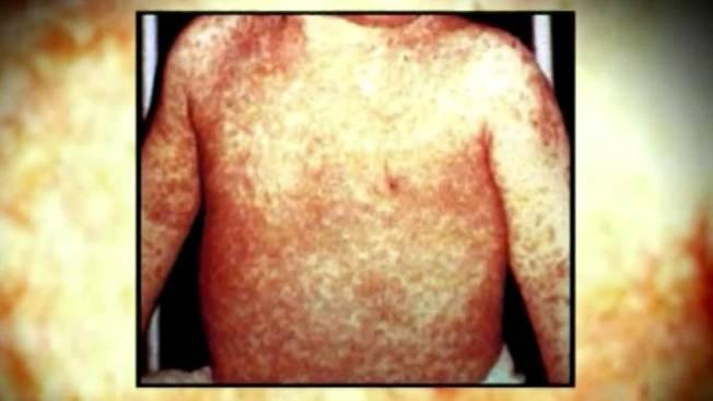 California: casos de sarampión ascienden a 91