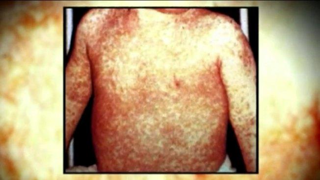 Termina la ola de contagios de sarampión en CA