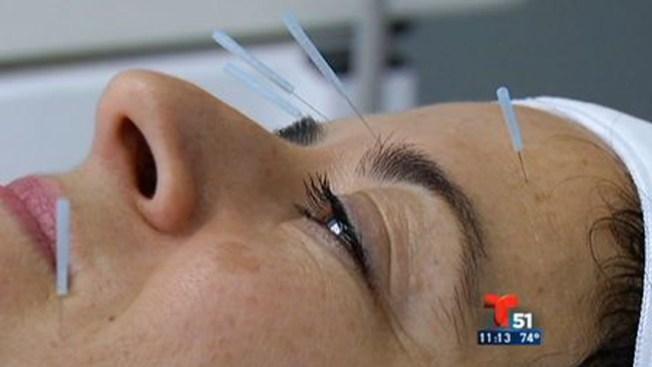 Virtudes de la acupuntura cosmética