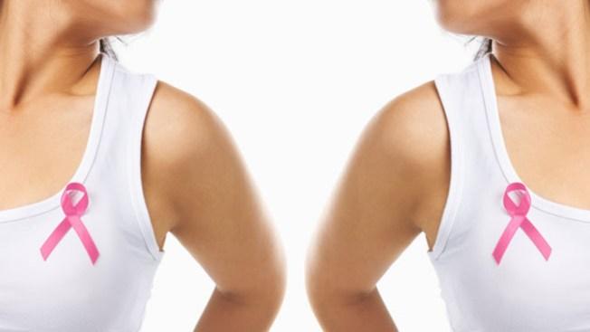 Vinculan sobrepeso a cáncer de ovario